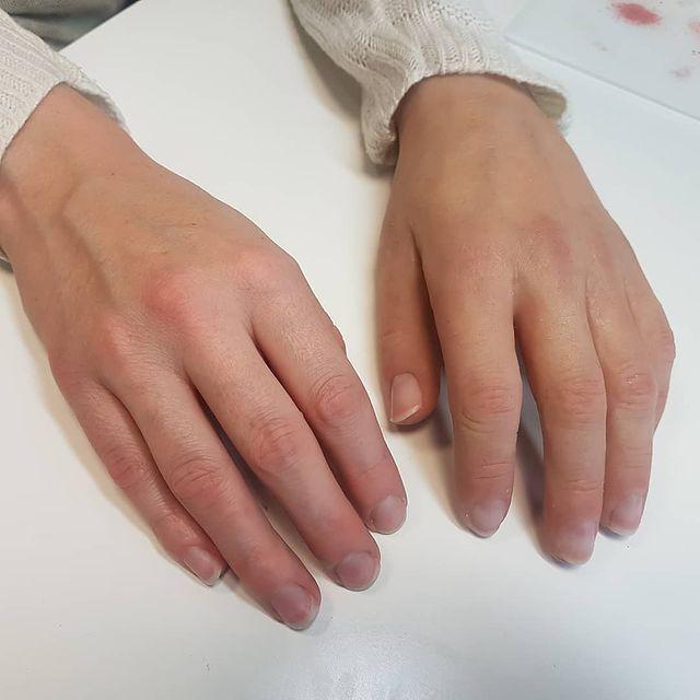 Proteza estetyczna dłoni lewej, indywidualnie koloryzowana. Proteza jest lustrzanym odbiciem prawej dłoni dzięki modelowi 3D wykonanemu przez skan dłoni.