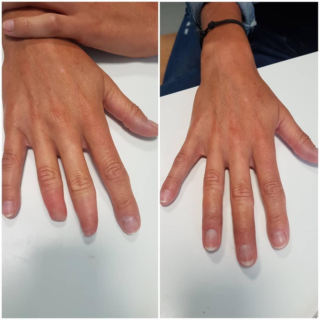 Kluczowym założeniem w produkcji protez jest stworzenie produktu, który będzie przedłużeniem amputowanej części, w kolorze jak najbardziej zbliżonym do koloru skóry.