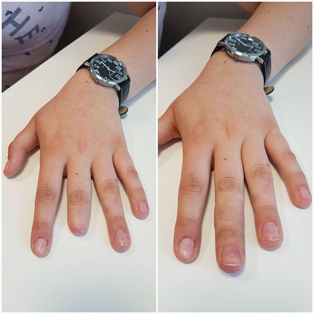 Proteza palca z paznokciem akrylowym, z indywidualnie dobranym kolorem skóry.