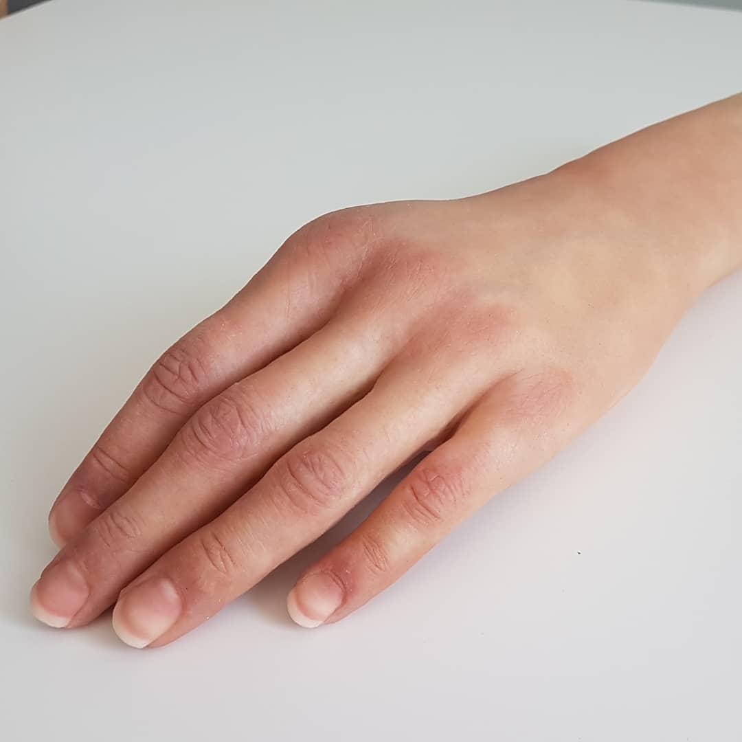 Proteza dłoni przy wyłuszczeniu w stawie nadgarstkowym.