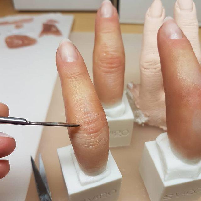 W protezach estetycznych ważna jest dbałość o szczegóły, zarówno anatomiczne, jak i kolorystyczne.