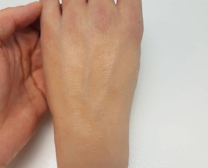 Przy produkcji protez estetycznych bardzo ważne jest uchwycenie detali i szczegółów anatomicznych, takich jak żyłki czy przebarwienia.